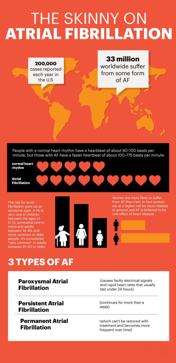 Atrial fibrillation facts - MKexpress.net