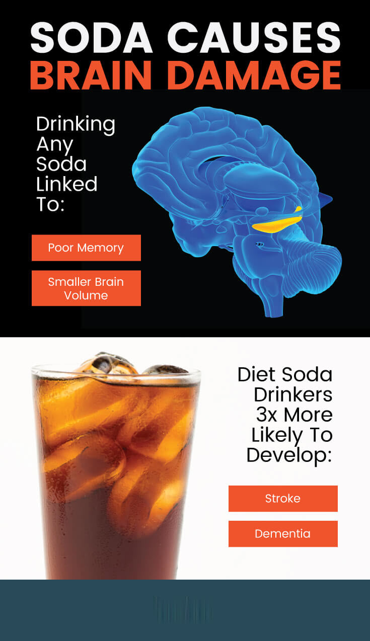 Artificially sweetened drinks increase risk of stroke and dementia - MKexpress.net