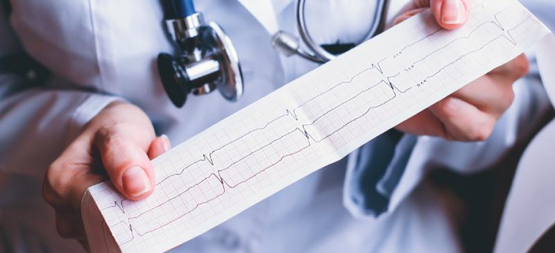 Bradycardia - MKexpress.net