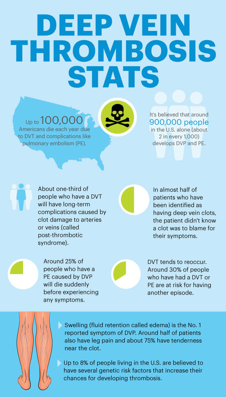 Deep vein thrombosis stats - MKexpress.net