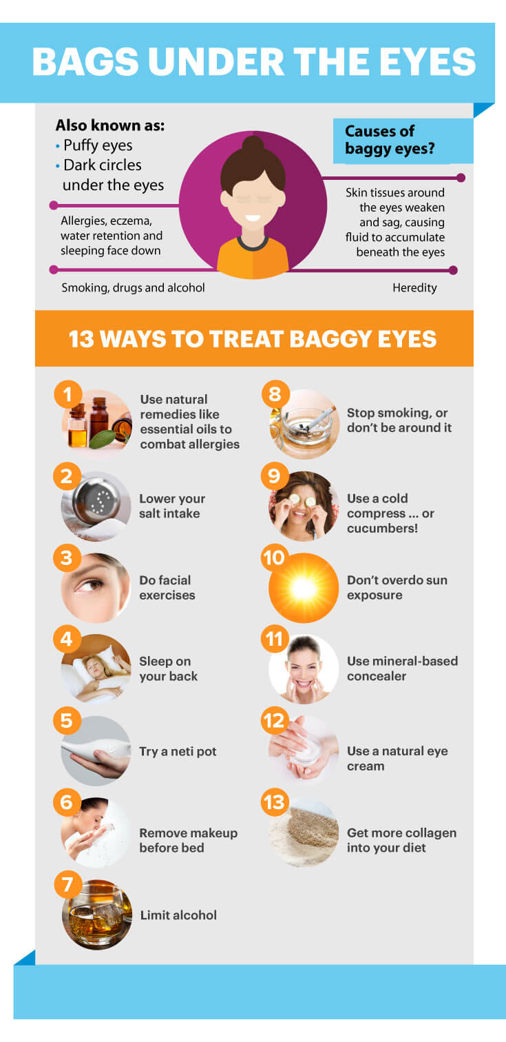 How to Get Rid of Bags Under Eyes - MKexpress.net