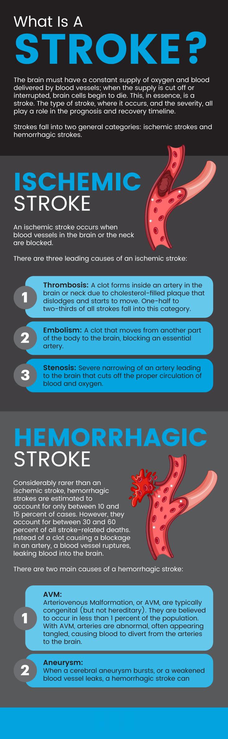What is a stroke?: warning signs of a stroke - MKexpress.net