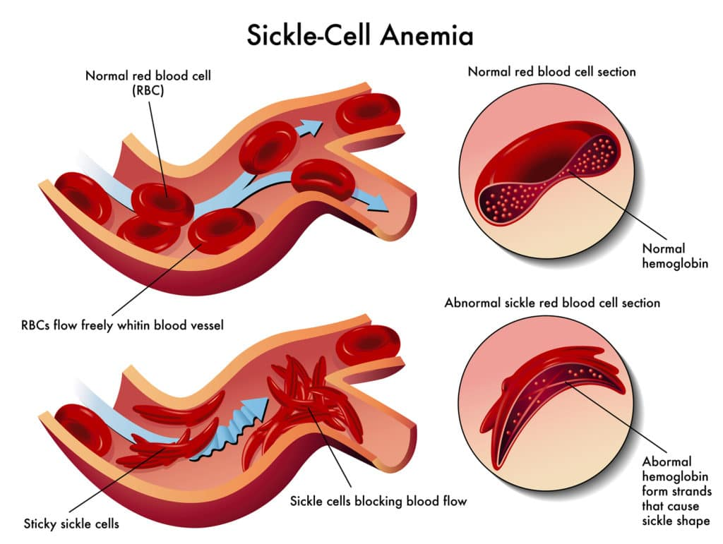How Anemia is Diagnosed