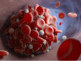 Embolism Definition Medical